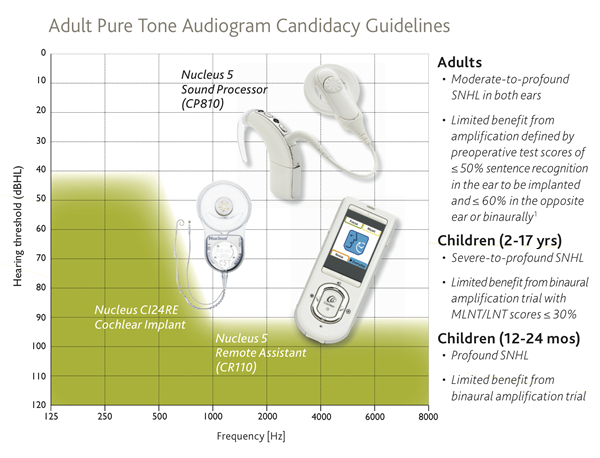 cochlear_implant_candidacy
