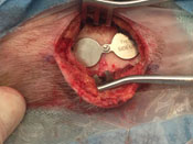 Magnet Implanted via 5 cm Incision
